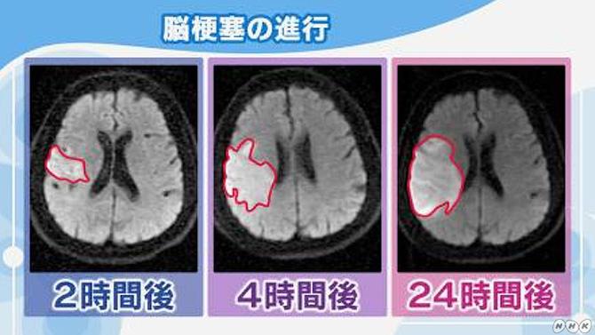 進行が速い脳梗塞