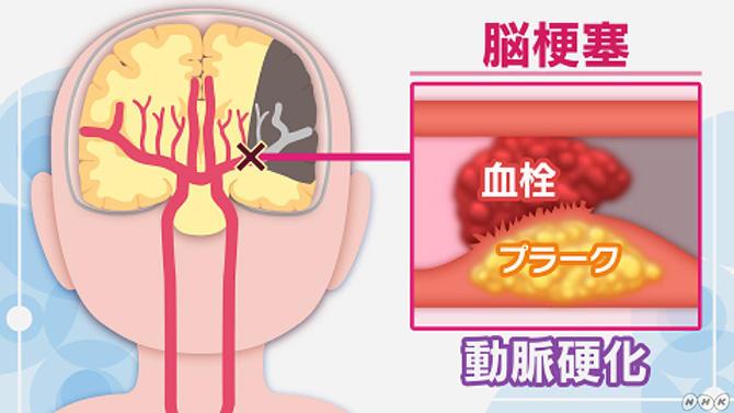 動脈硬化が原因の脳梗塞