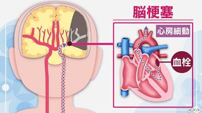心房細動が原因の脳梗塞