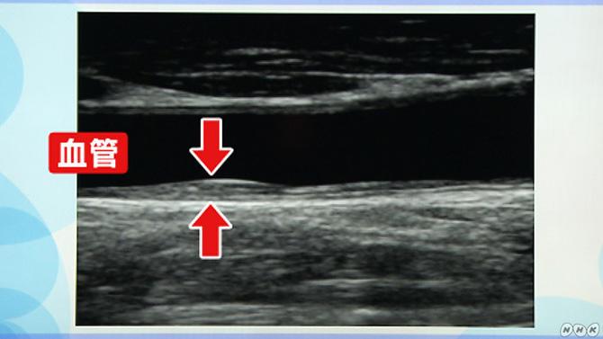 動脈硬化かどうかがわかる「頚(けい)動脈エコー検査」