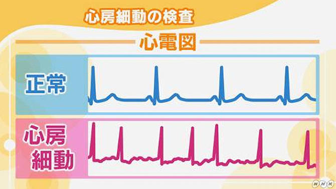 心房細動の検査