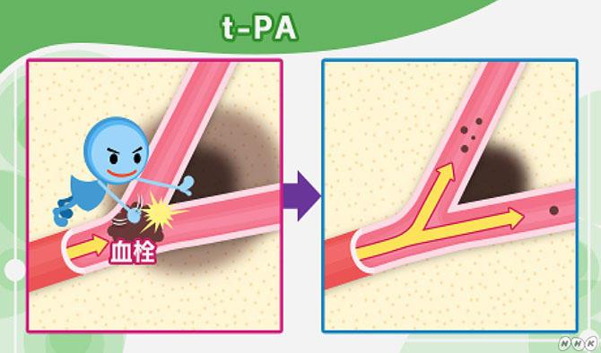 血栓を溶かす薬「t-PA」