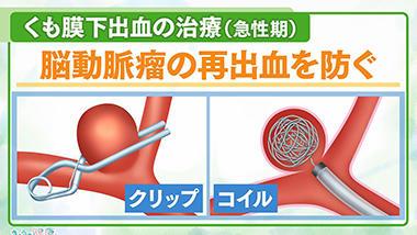 くも膜下出血の治療