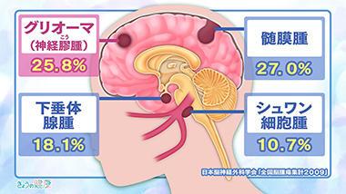 脳腫瘍とは