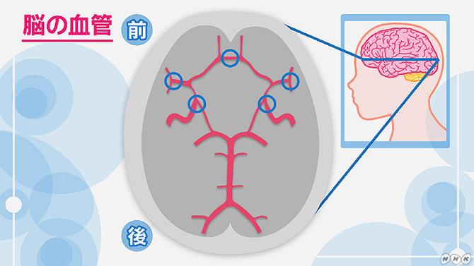 未破裂脳動脈瘤とは