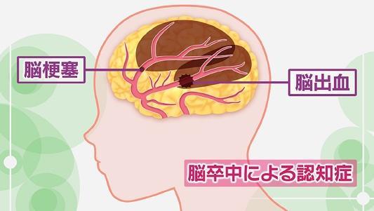 脳卒中によって起こる血管性認知症