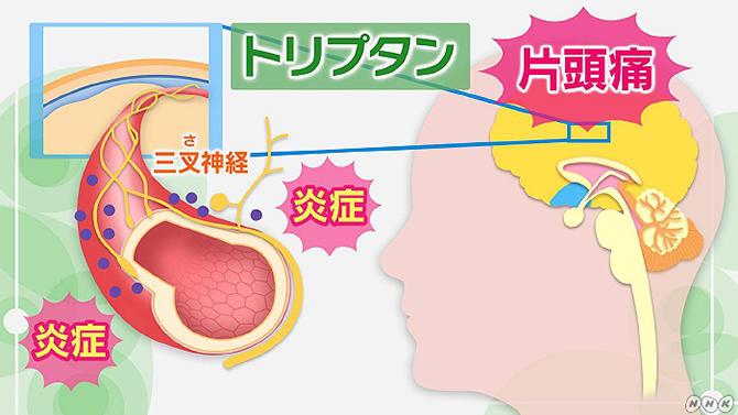 片頭痛の治療