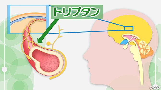 片頭痛の治療2